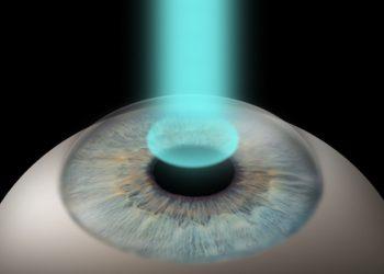 lasek treatment Billy Power Ophthalmologist - Laser eye Surgery - Blackrock Clinic