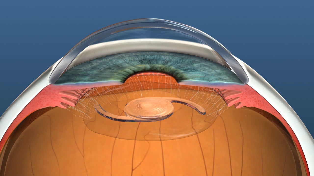 Lens implant and replacement description image